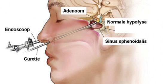 Hipofiz Ameliyatı